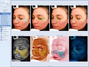Få gratis hudskanning og 20% på Elixirs produkter hos Frøken Dings